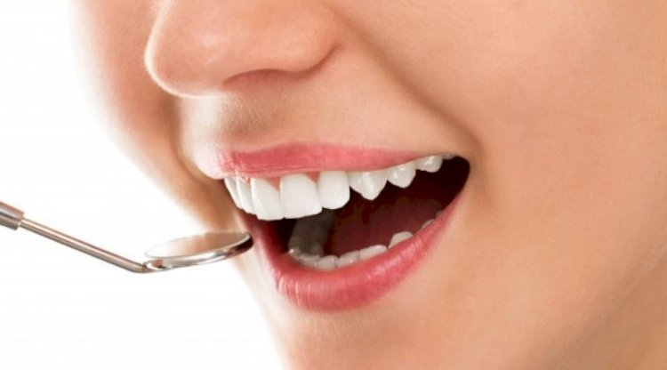 What is cosmetic dentistry? Options, Procedures & Side effects