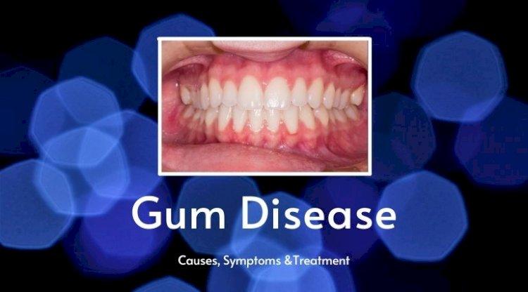 Gum Disease: Causes, Symptoms & Treatment