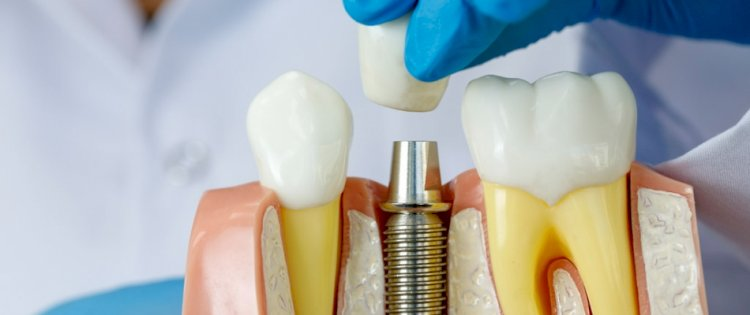 Get Properly Aligned Teeth With Dental Implants