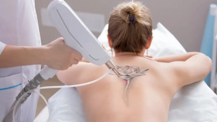 The Truth About Laser Tattoo Removal