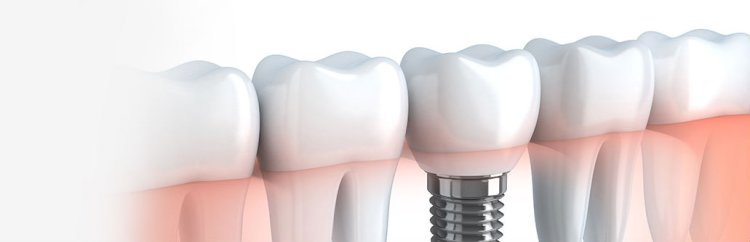 All you need to know about dental bridges and crowns